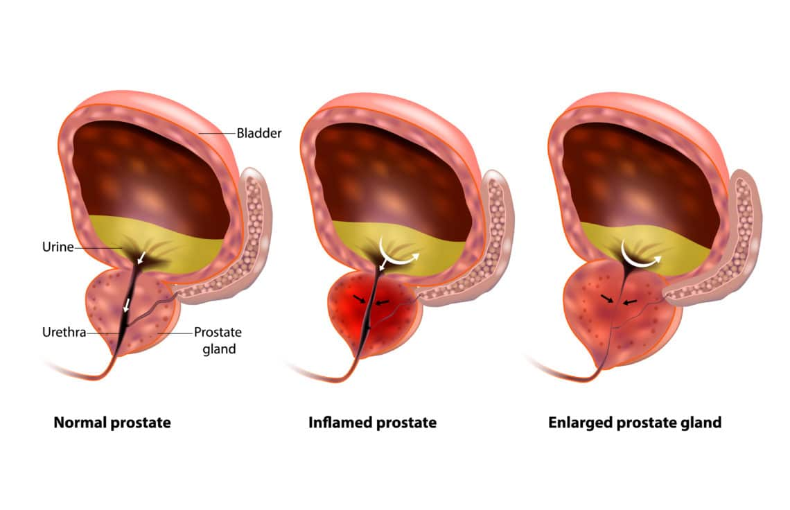 Is It Possible For An Enlarged Prostate To Be Cured?