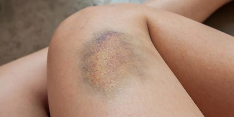 All You Need to Know About Bruising Easily